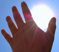 Що робити при сонячному опіку