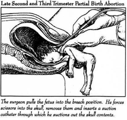 чи робити аборт