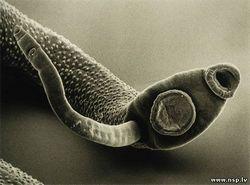 У здоровому організмі глисти не живуть